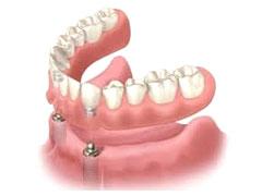 インプラント固定型義歯